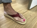 Exceptional treatment outcome with Orthotic thongs!